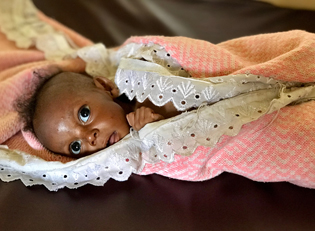 malnourished child DR Congo